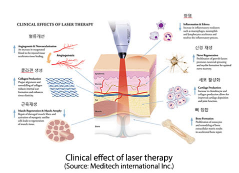 Clinical Effects Of Laser Therapy